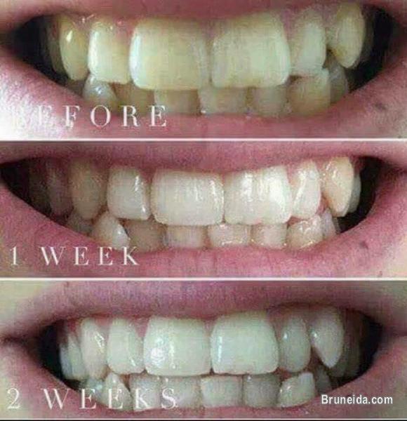 Ap24 Whitening Toothpaste in Brunei