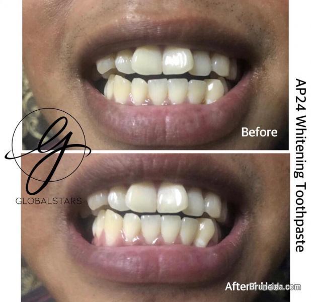 Picture of Ap24 Whitening Toothpaste in Brunei Muara