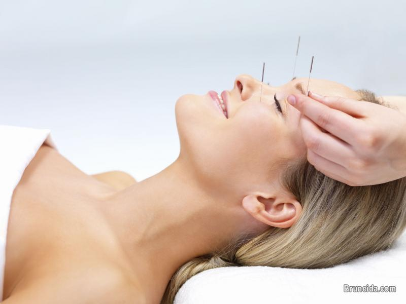 Picture of ACCUPUNCTURE DAN HOMEOPATHY